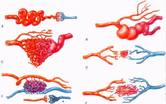 Артериовенозные мальформации головного мозга. Отделение ...