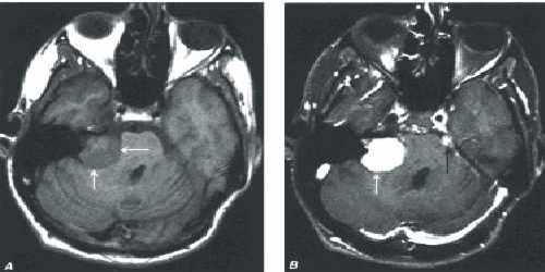 невринома слухового нерва лечение: