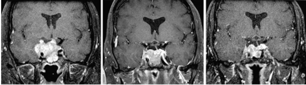 Симптомы и лечение аденомы гипофиза. Последствия заболевания